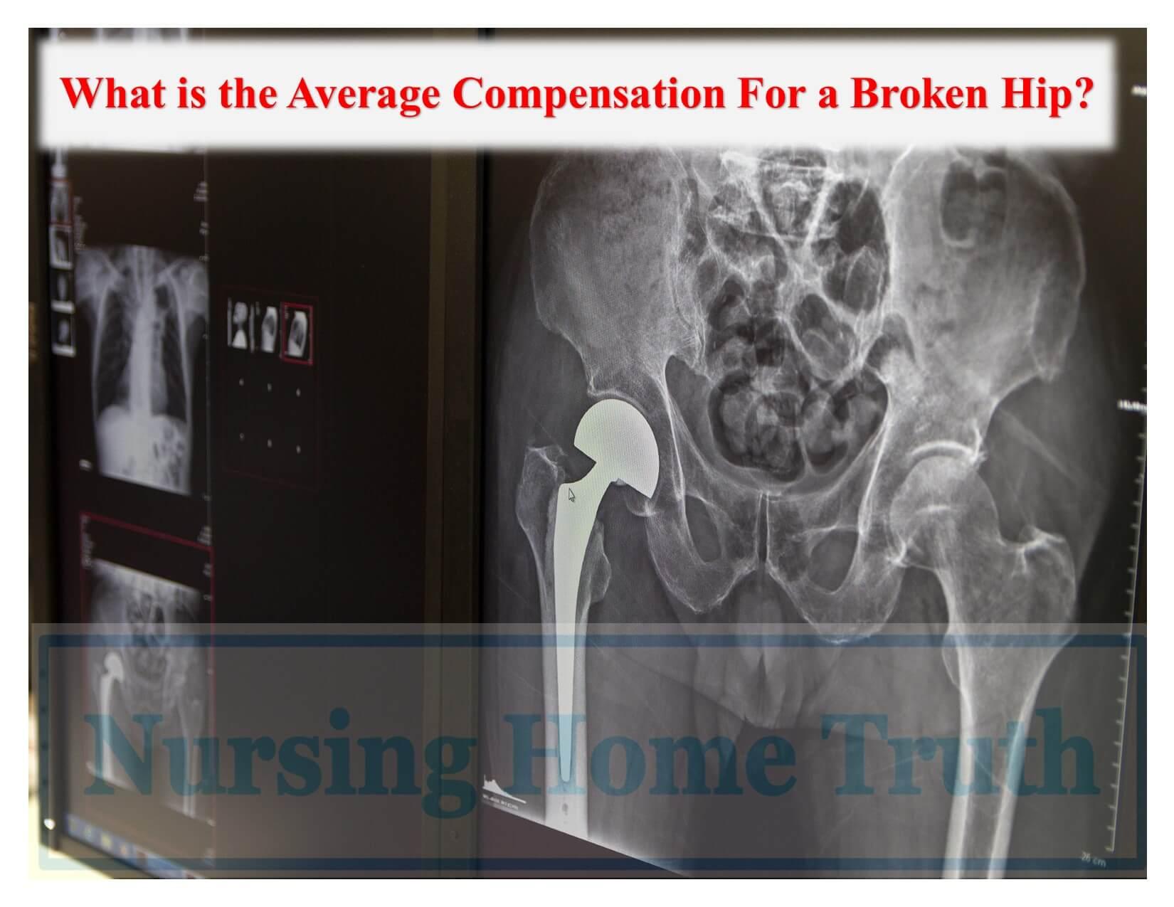 Average Broken Hip Compensation