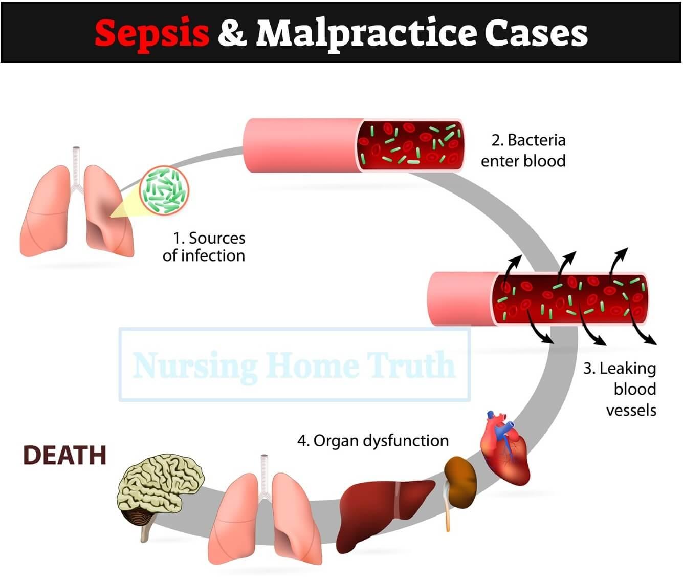 Sepsis Malpractice