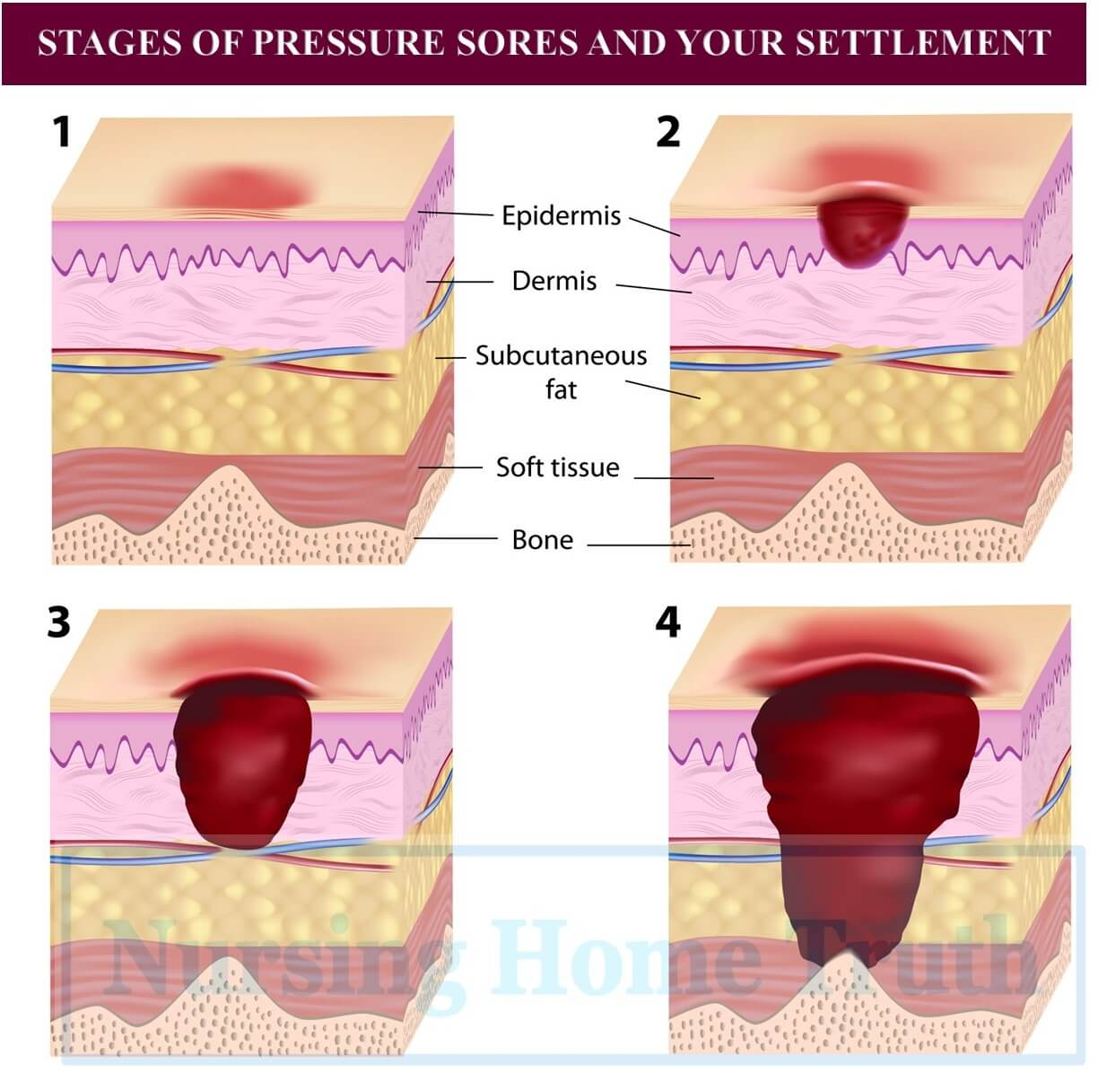 Lawsuits for Stage 4 Pressure Ulcers