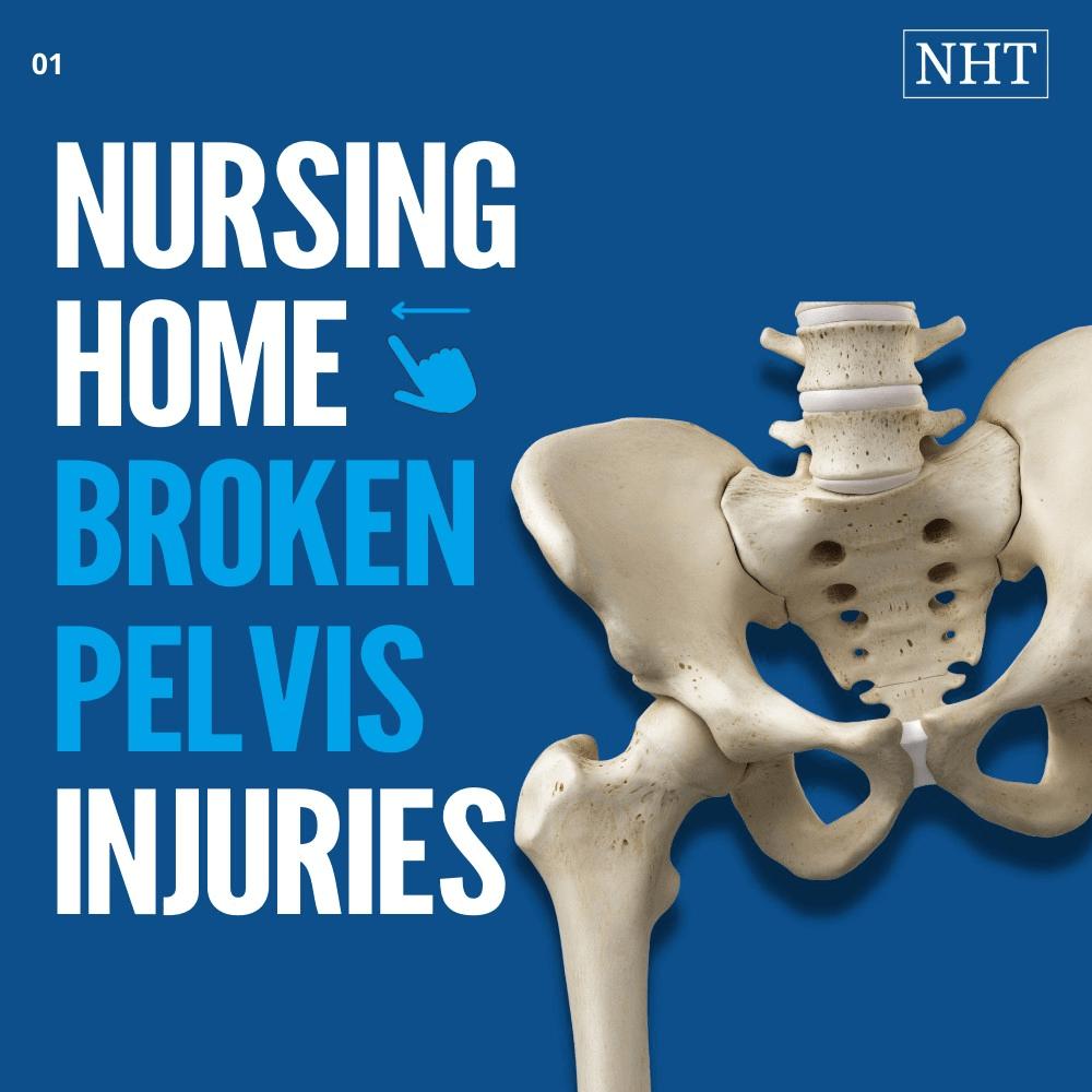 average compensation for broken pelvis