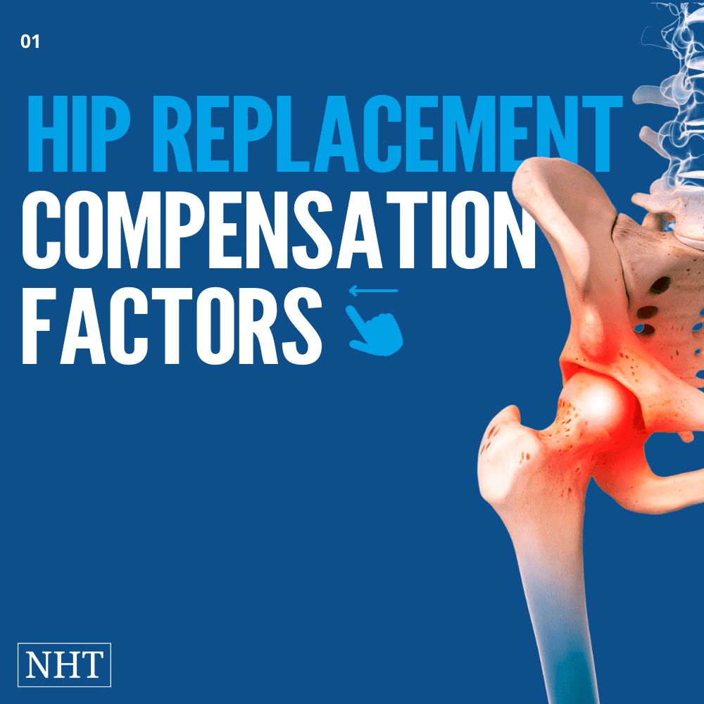 Hip replacement compensation amounts in the US