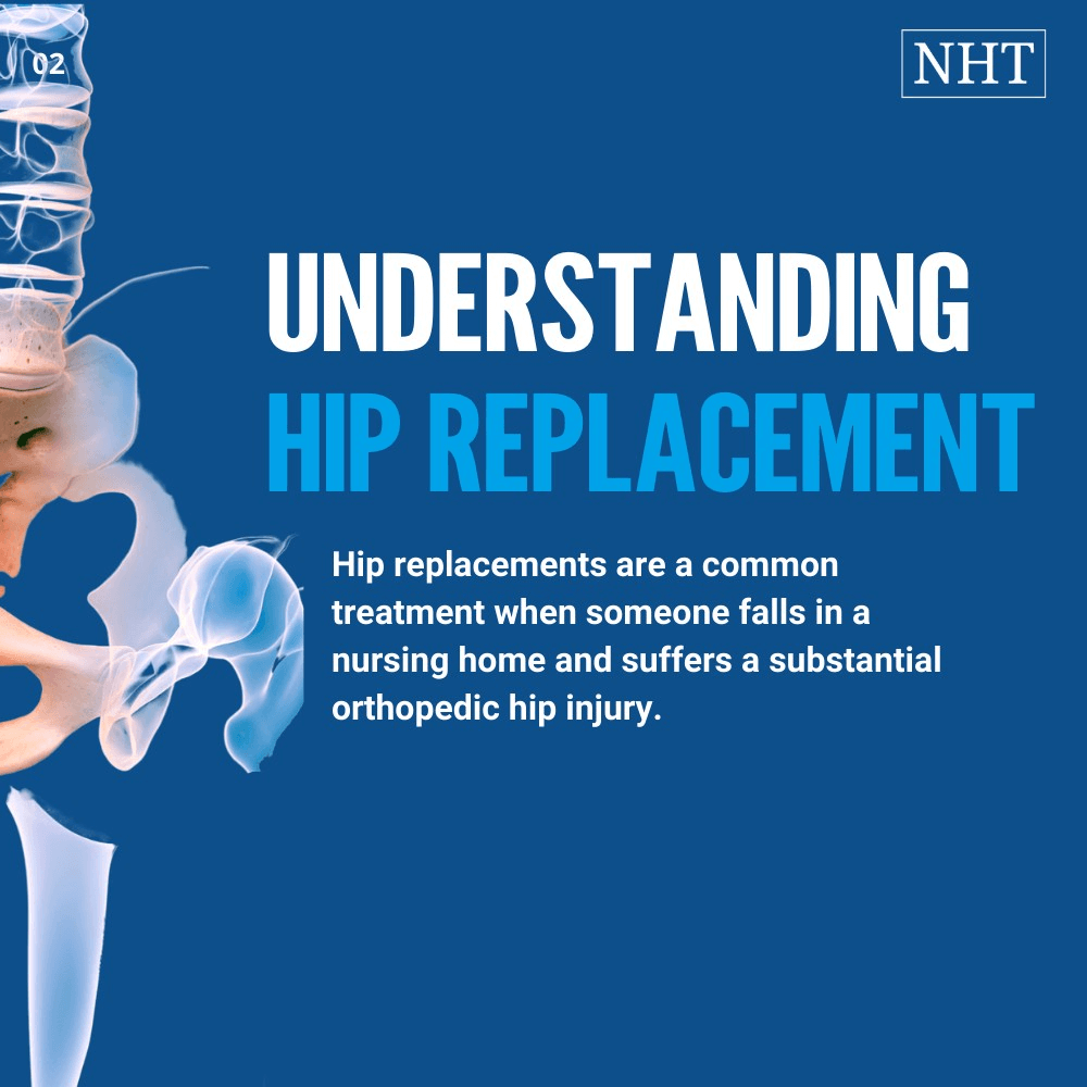 How much compensation you will get for a hip replacement depends on medical issues
