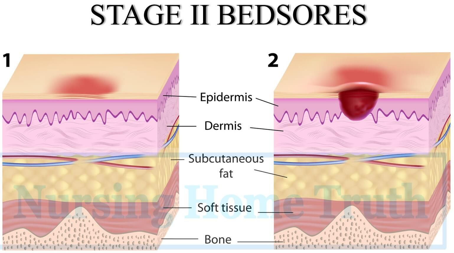 bedsore claims by stages