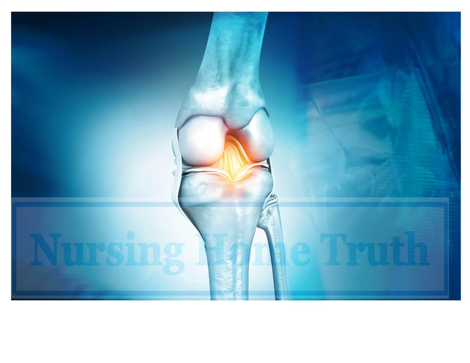 knee surgery verdict demonstrative