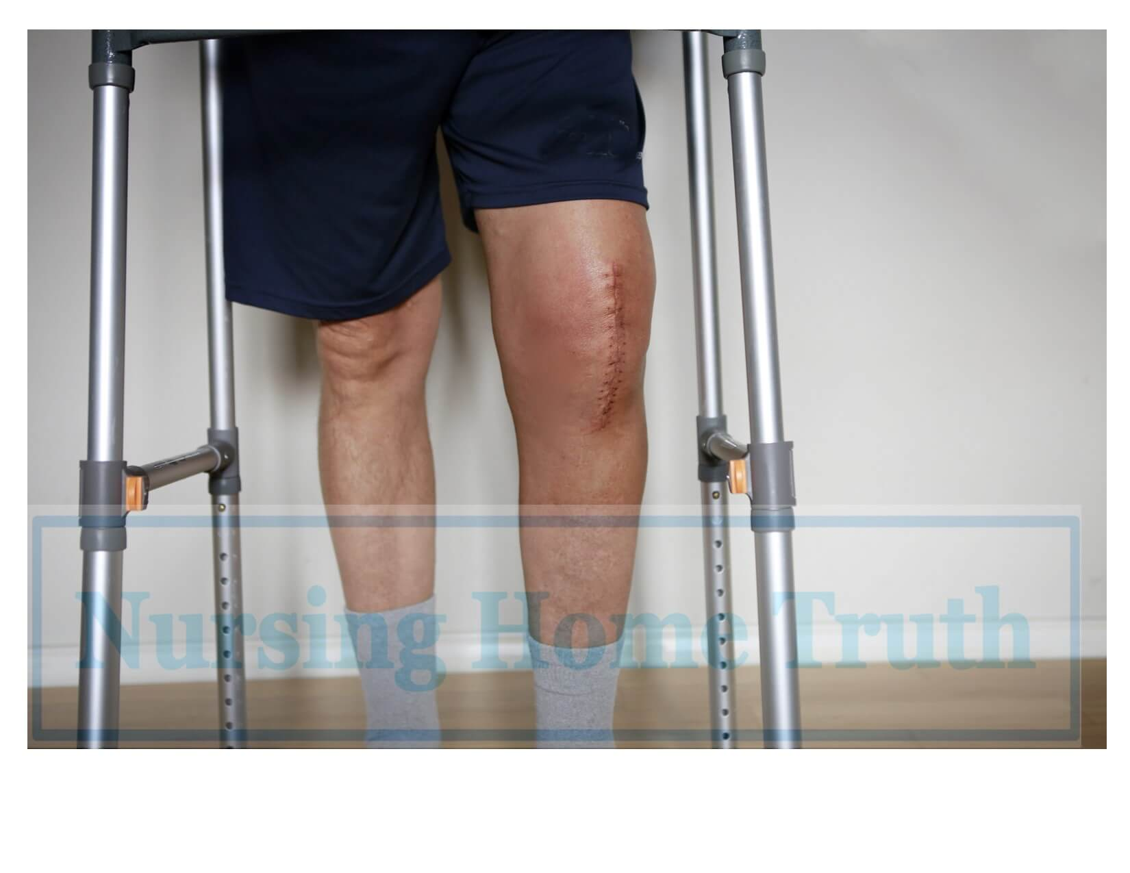 knee replacement settlement for scars